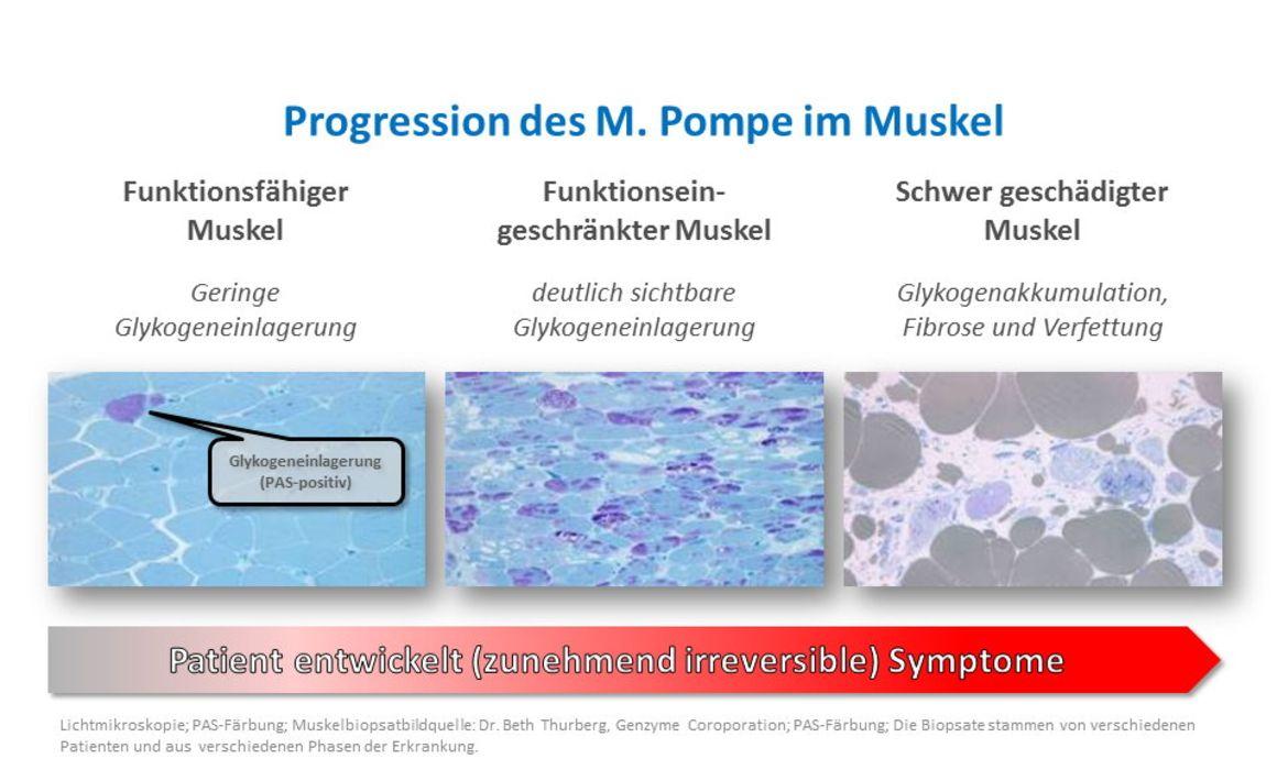 erwachsene biopsie krankheit mitochondriale beginn ergebnis